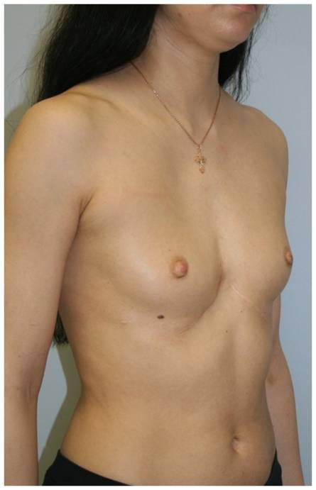 У многих девушек с воронкообразной деформацией грудной клетки (около 80%) о