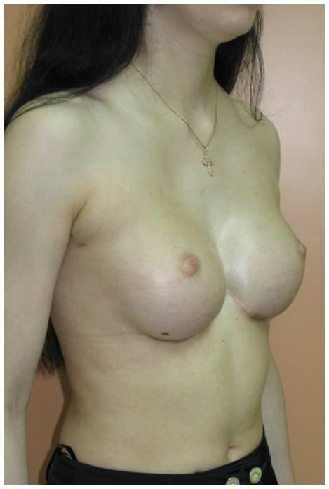 Лечение деформации грудной клетки у известных торакальных хирургов дмн Руда