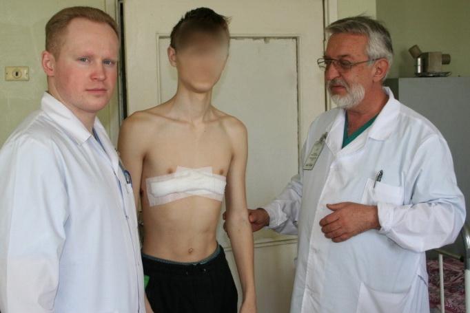 Деформации грудной клетки у детей - Красота и Медицина.