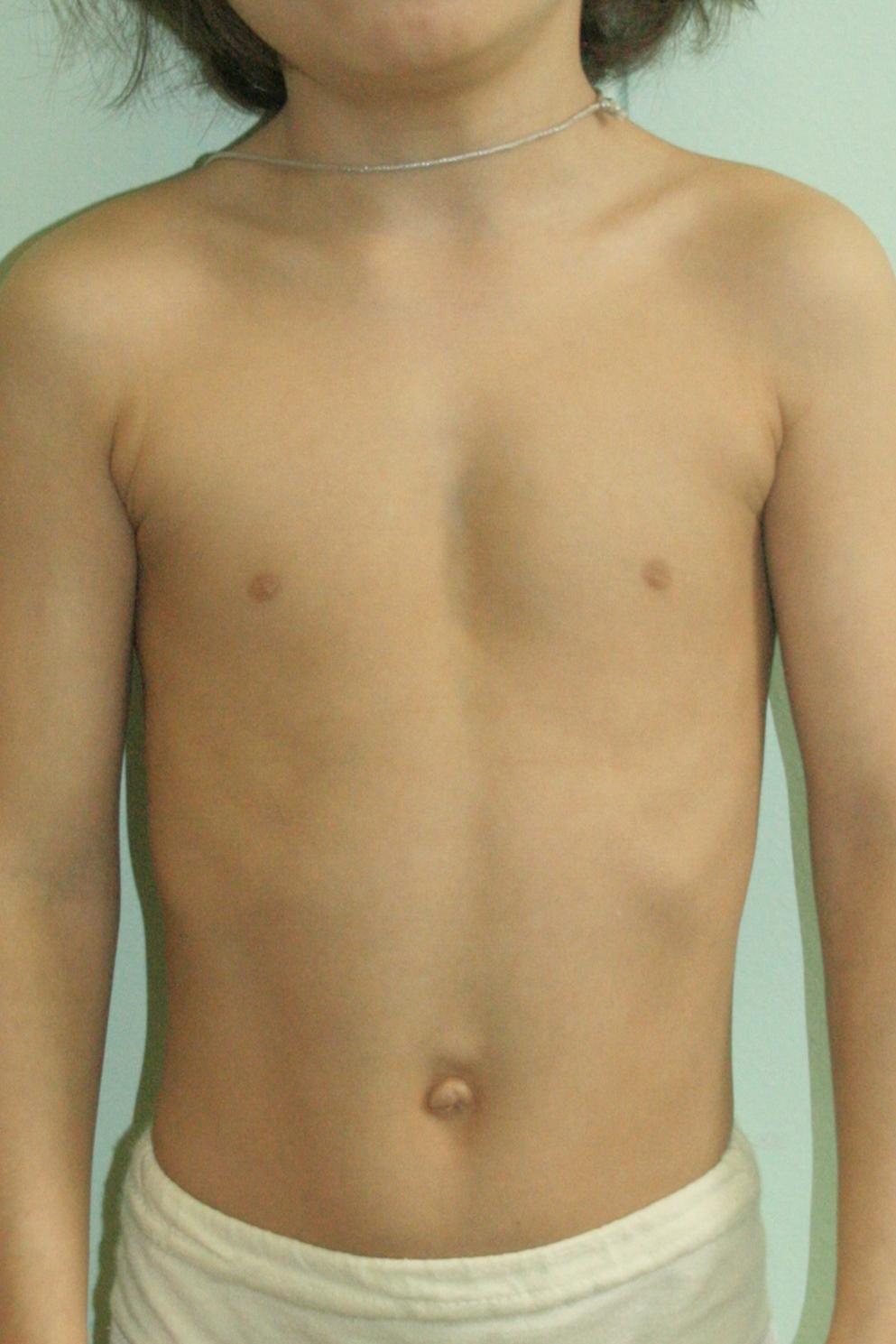 Фото развития груди 4 фотография