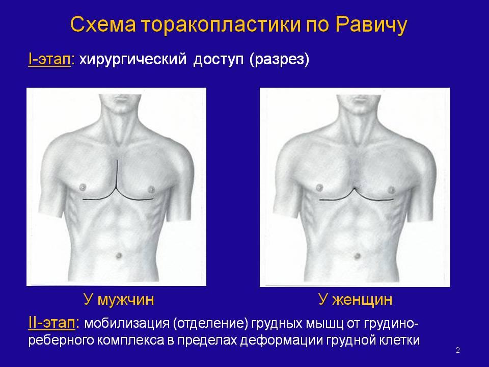 Гоноцит